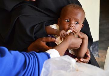 Erdnusspaste rettet Leben - Unicef im Kampf gegen Mangelernährung